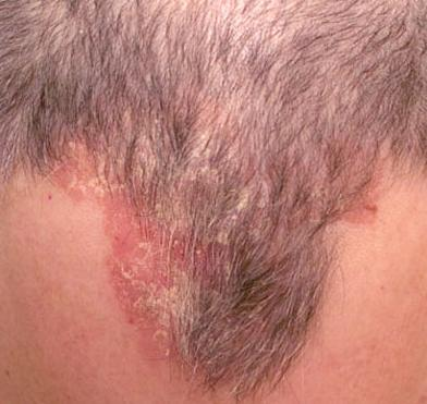 scalp-eczema